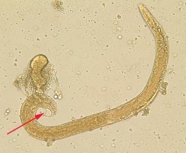 az emberi orsóféreg és a pinworm közös jellemzői