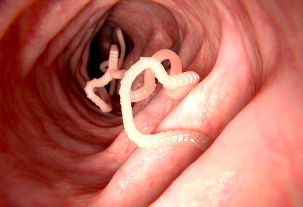 csepp a parazitáktól a testben