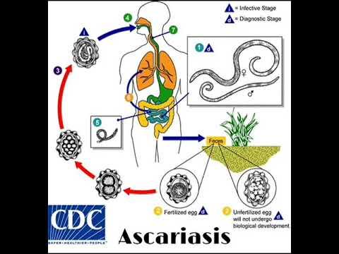 különféle paraziták emberben a zsálya parazitáktól segít
