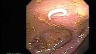 a lamblia parazita utal mi az emberben a féreg