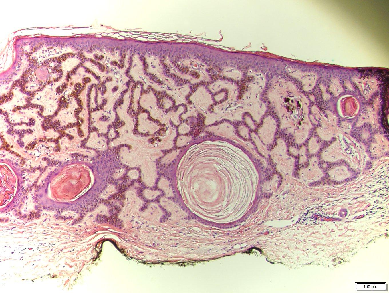 paraziták szerológia elhízás a paraziták miatt