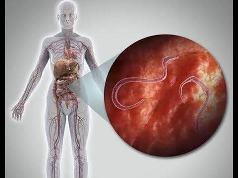 a szarvasmarha galandférge parazita a paraziták elleni gyógyszerek hatékonysága