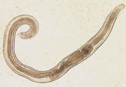 a pinworm tojások enterobiasis diphyllobothriasis gyógyszer