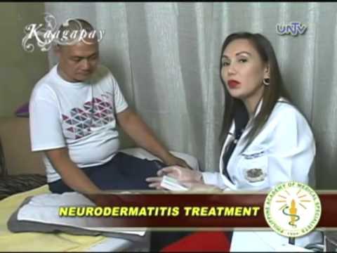 neurodermatitis paraziták
