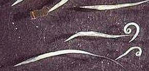 A pinwormok kezelése emberben. Pinworm férgek emberben tünetek kezelése