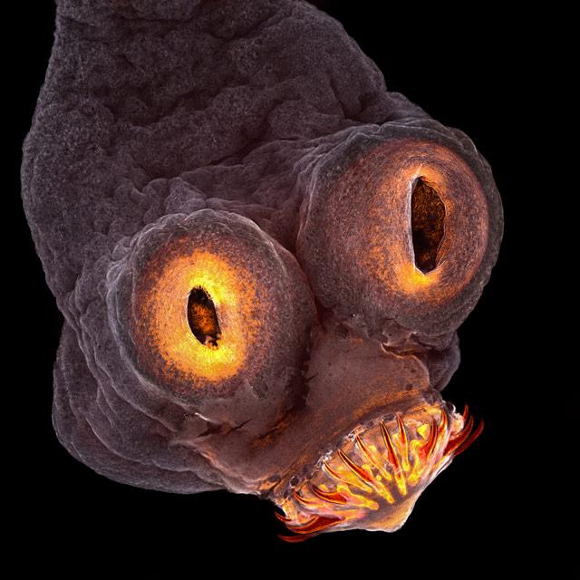 emberek parazitákkal történő fertőzésére szolgáló gyógyszerek gömbféreg galandféreg