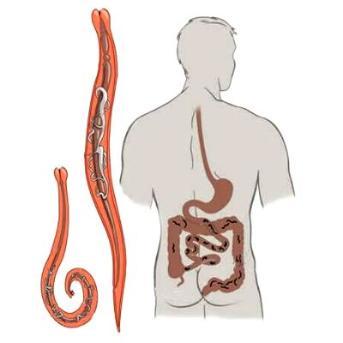kerekféreg a tüdőben tünetei az emberi testben élő legnagyobb paraziták