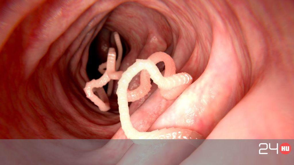 paraziták az ember szájában rossz lehelet torok kezelése