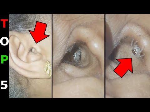 pinworms felmérés paraziták a bőr pórusaiban