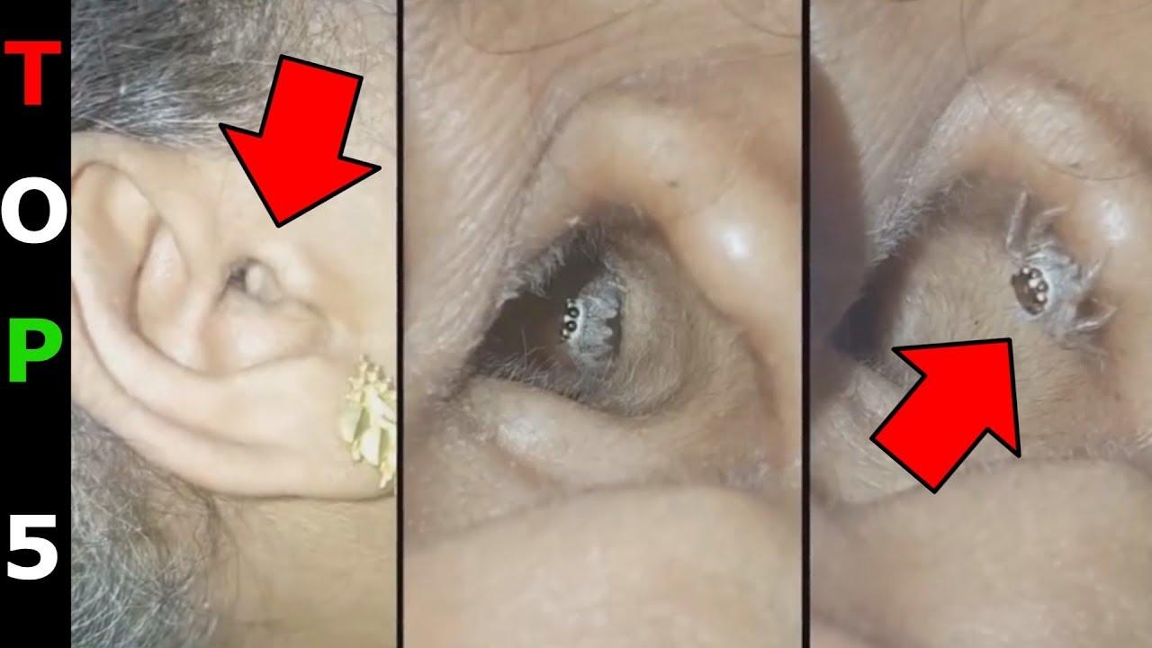 paraziták a hasi tünetekben