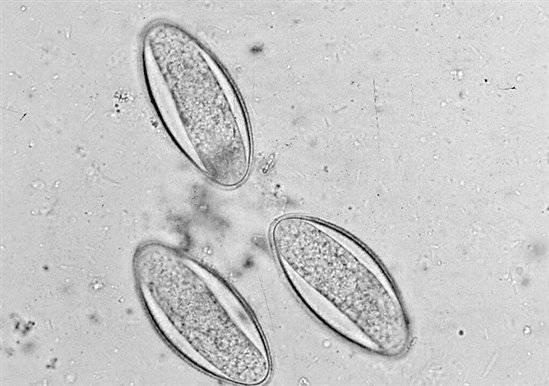 lehetnek a gégeférgek a torokban Nuxen vélemények parazitákról