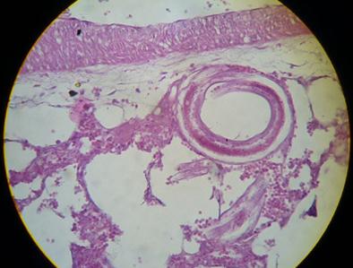 mik a gömbférgek és hogyan lehet visszavonulni garnélarák parazita