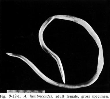 Féreg gyógyítása. A bélférgesség tünetei Helminthiasis esetek a Fülöp szigeteken
