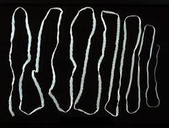felnőtt törpe galandféreg
