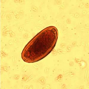 a pinworm tojások enterobiasis pinworm a végbélnyílás kezelésében