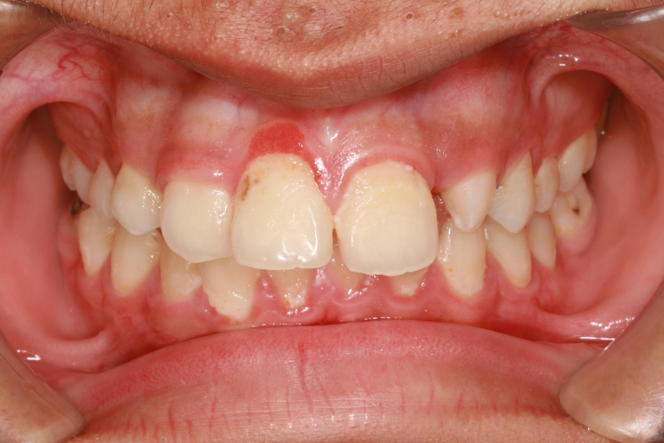 a száj kezelésének székletszaga