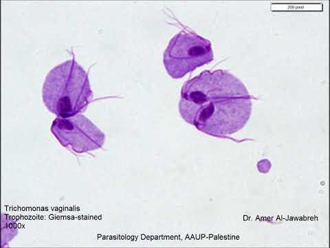 monocitózis paraziták hogyan lehet kilábalni a parazitákból