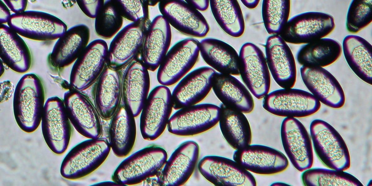 pinworms felmérés