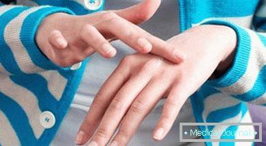 hatékony helmintaszer szag a szájból, hogyan lehet eltávolítani