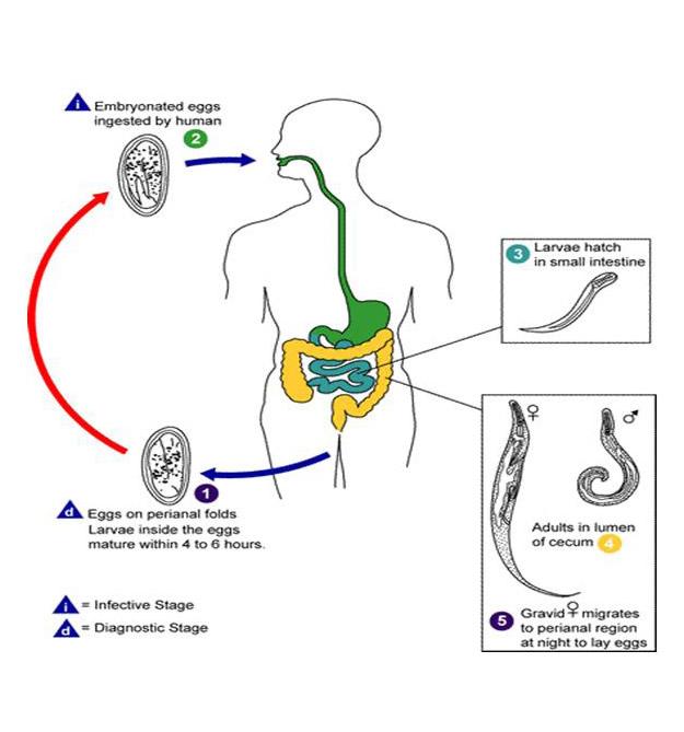 enterobiasis ciklus törpe parazita