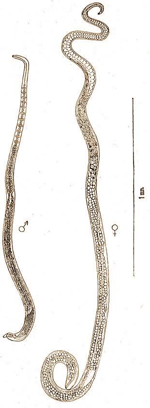 paraziták jelenléte a testkezelésben receptek a helminták eltávolítására