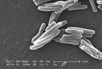 Tuberkulózis bacillus parazita vagy szaprofita,