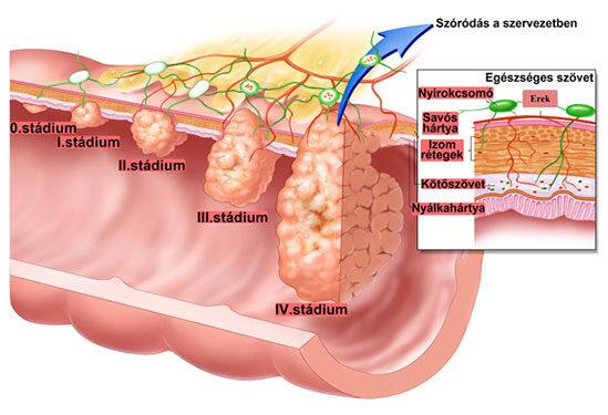 vastagbél paraziták tünetei paraziták a lemonemben