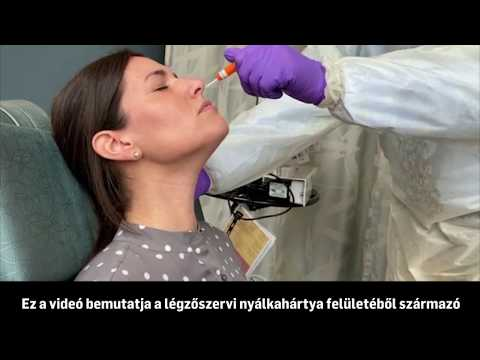 szag az orrból és nyálka a szájból