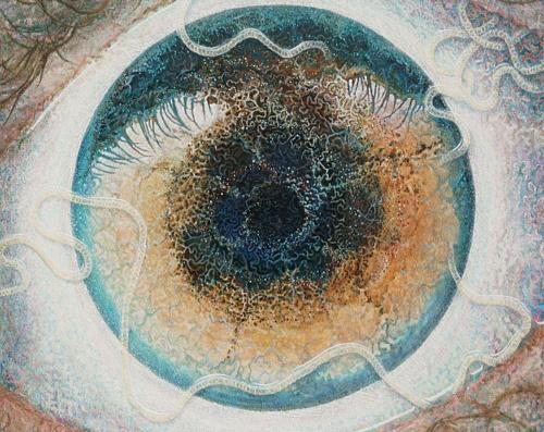 parazita szem nélkül parazitákkal hogyan kell kezelni