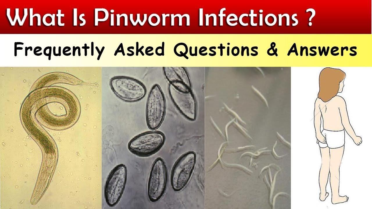 Pinworm méh
