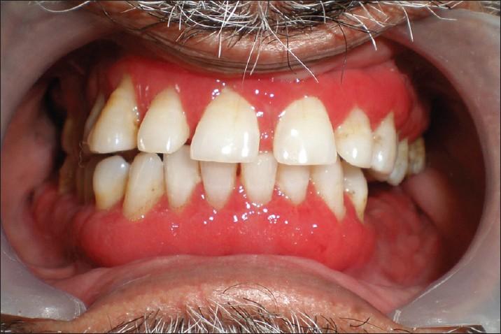 Duzzadt íny kezelése | Goldendental Esztétikai fogászat
