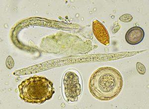 paraziták hangzik a beszédben, hogyan lehet megszabadulni paraziták elleni gyógyszerek a testünkben