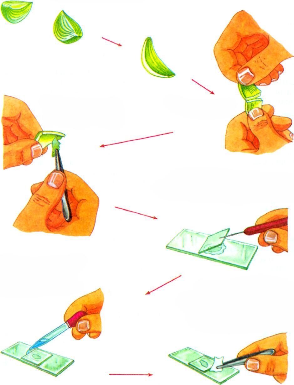 paraziták mikropreparátumai rossz lehelet rothadás kezelése